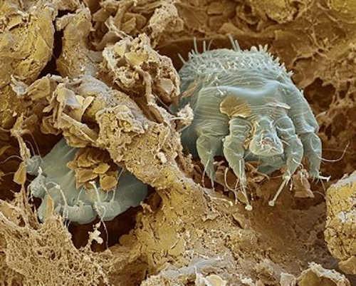 parasitos pegados en el cuerpo